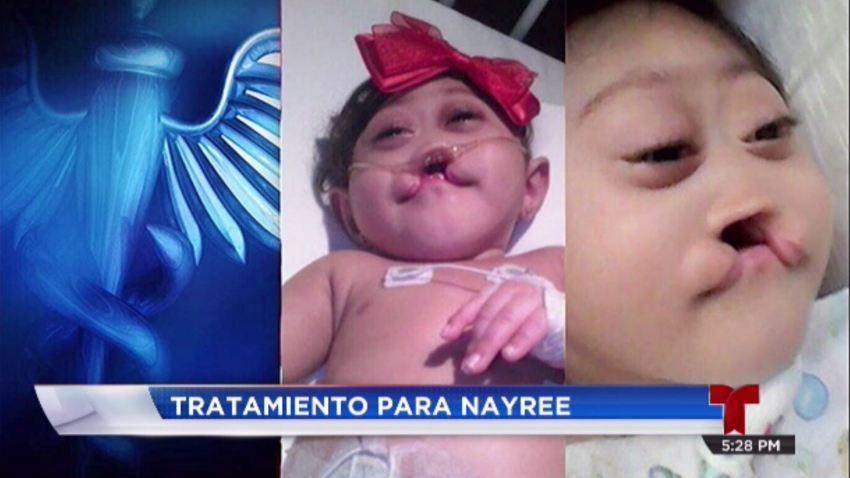 nayree bebe teelenoticias