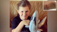 Una niña de 10 años fue mordida en las piernas por un tiburón en una playa del condado de St. Johns, en la costa noreste de Florida, y tuvo...