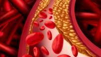 Casi el 40% de la población en EEUU sufre enfermedades cardíacas; una de cada cada cuatro muertes es por problemas del corazón. Te explicamos de qué se trata,