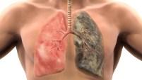 Una de cada cinco muertes en EEUU es causada por esta adicción que ataca los pulmones.