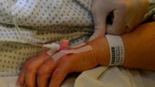 Qué es el lupus, el mal crónico que afecta a todo el cuerpo