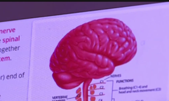 Alerta de salud en Collier por caso de mielitis flácida