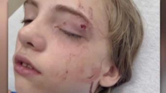 Acusado de atacar a un estudiante con unas tijeras