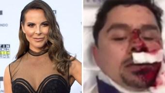 Kate del Castillo deja mensaje de apoyo a Larry Hernández