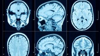 Combaten cáncer con células vertidas en el cerebro