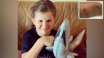Niña sobrevive a ataque de tiburón en una playa de Florida