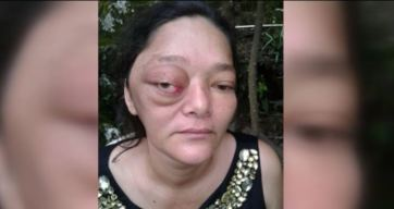 Visa humanitaria, madre con agresivo tumor clama ayuda