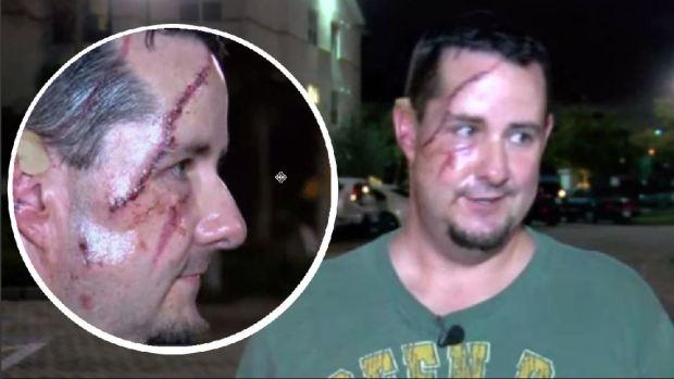 Desfigurado tras ataque de oso cuando paseaba el perro