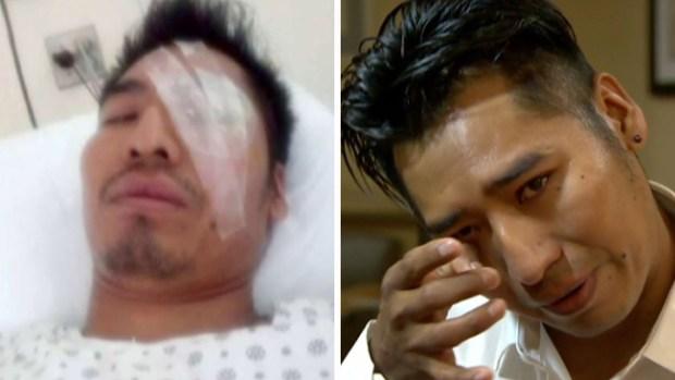 Le explota botella de cerveza en el rostro y queda ciego de un ojo