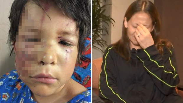 Mascotas enloquecidas desfiguran rostro de niño hispano
