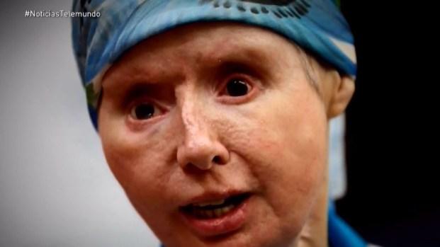 La mujer que perdió su cara y manos por ataque de chimpancé