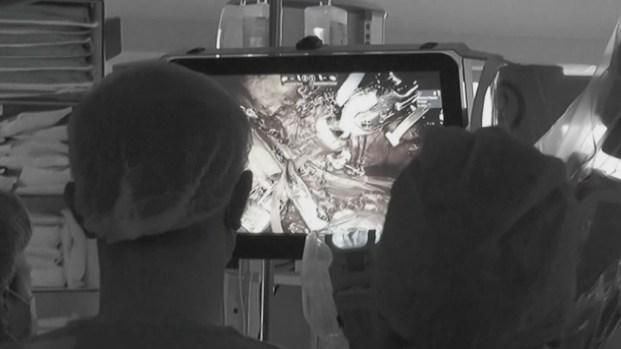 Realizan exitoso trasplante robótico de riñón