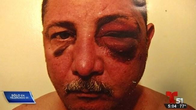 Policías acusados de violencia contra hispano