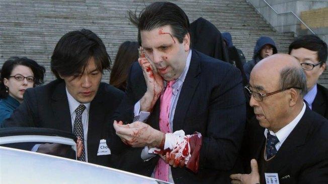 Embajador mejora tras ataque a navajazos