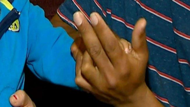 Torturas de su madre le desfiguraron los dedos