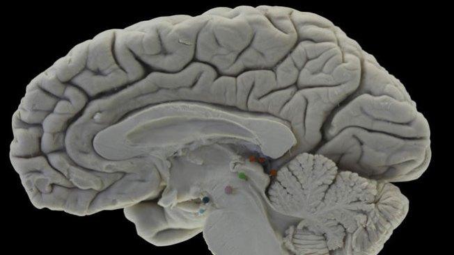 Avance médico en lucha contra Alzheimer