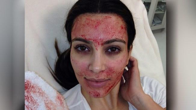 Kim Kardashian admite vampirismo